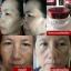 Aurum Ginseng Collagen Cream ออรัม ครีมอั้ม พัชราภา thumbnail 5