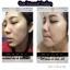 VC Bio Face Serum วิตซีน้องฉัตร thumbnail 8